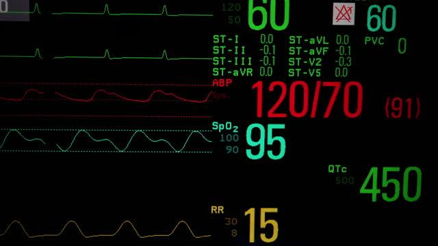 vital sign monitor - monitoring equipment stock videos & royalty-free footage
