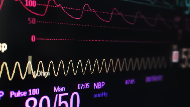vital signs monitor screen - pulse oxymeter stock videos and b-roll footage