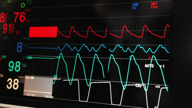 vital signs monitor - casualty stock videos & royalty-free footage