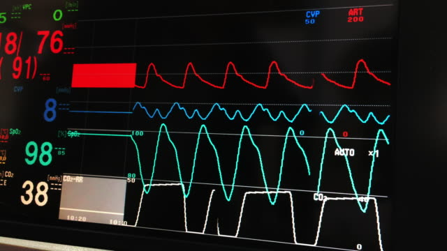 vital signs monitor - blood pressure gauge stock videos & royalty-free footage