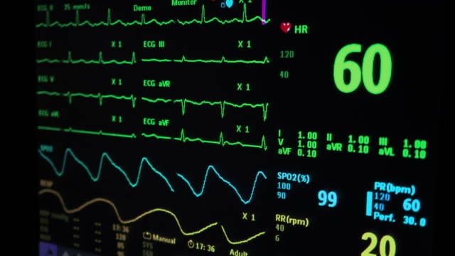 vital signs monitor - pulsating energy stock videos and b-roll footage