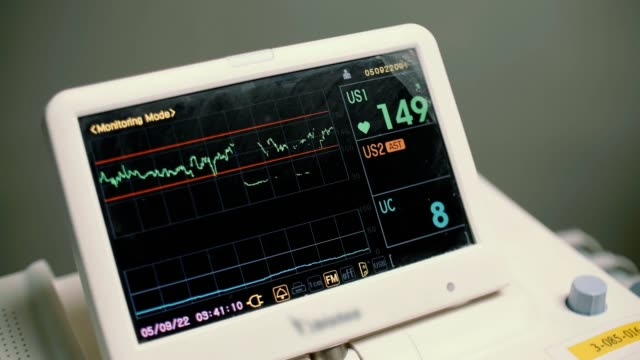vital signs monitor - oxygen stock videos & royalty-free footage