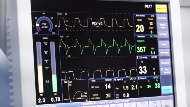 vital signs monitor - pulsating stock videos & royalty-free footage