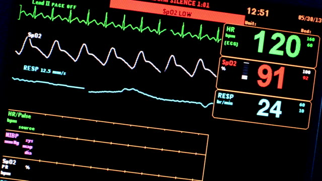 vital signs monitor - porous stock videos & royalty-free footage