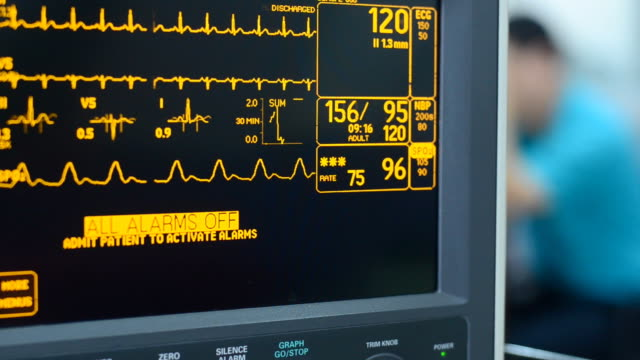 vital signs monitor - cardiac conduction system stock videos and b-roll footage