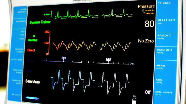 vital signs monitor - coronary artery stock videos and b-roll footage