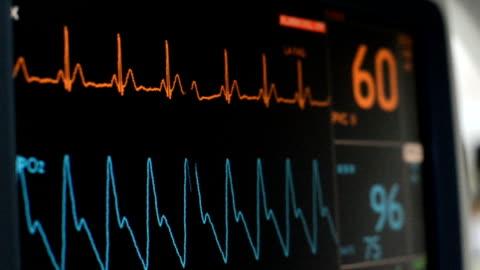 vídeos y material grabado en eventos de stock de monitor de signos vitales - equipo médico de escaneo