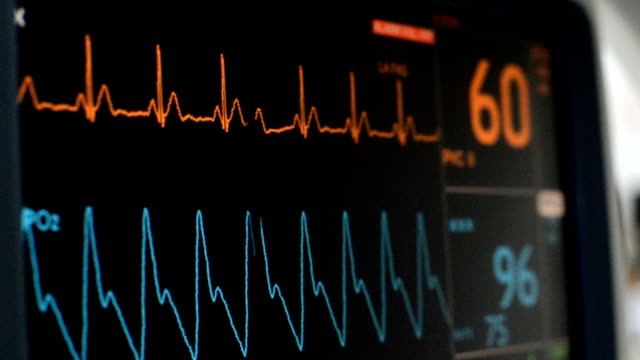 vital signs monitor - medical examination stock videos & royalty-free footage