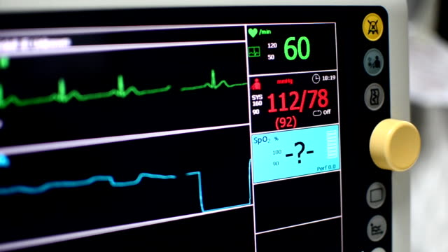 vital signs monitor - blood vessel stock videos and b-roll footage