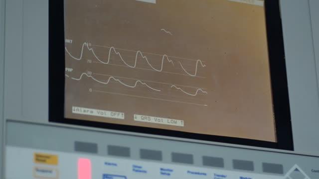vídeos de stock, filmes e b-roll de sinais vitais monitor - sistema de condução cardíaco