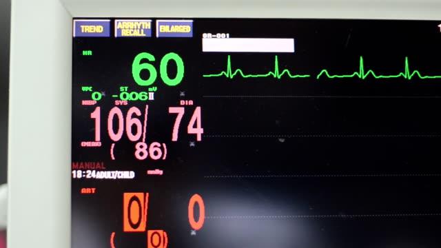 vídeos de stock, filmes e b-roll de sinais vitais monitor - ultrasonografia médica equipamento de monitoramento
