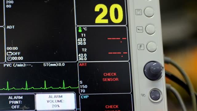 vídeos y material grabado en eventos de stock de monitor de signos vitales - equipo respiratorio