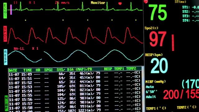 Segni vitali monitor