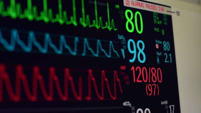 vital signs monitor - lung stock videos and b-roll footage