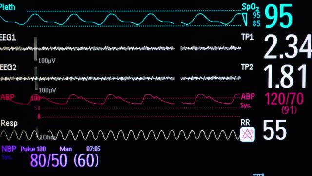 vital signs monitor - reparto di terapia intensiva video stock e b–roll
