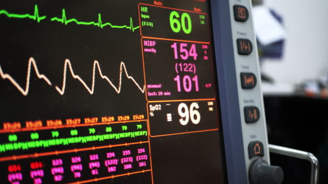 vital signs monitor - pulse trace stock videos & royalty-free footage