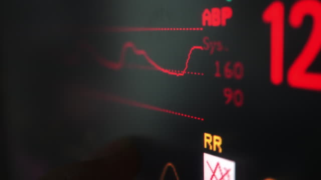 vital signs monitor - diagnostic medical tool stock videos and b-roll footage