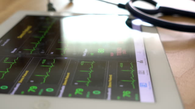 vital signs screen monitor - pulse trace stock videos & royalty-free footage