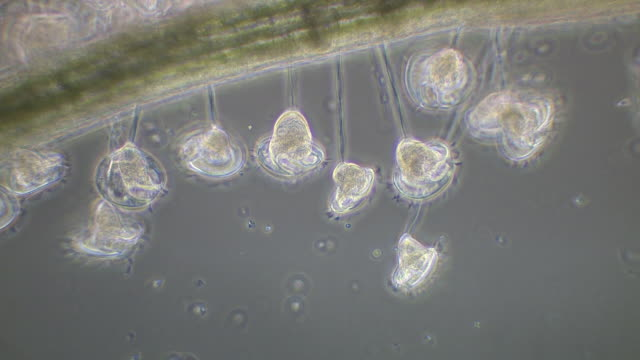 vorticella sp. living in in clusters on the root of duckweed (lemna sp.) in west wales, each stalk is individually attached to the root surface. - cell division stock videos & royalty-free footage