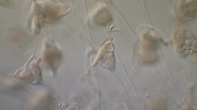 vídeos de stock, filmes e b-roll de vorticella sp. with contracting stalks. vorticella is a genus of protozoa, with over 16 known species. they are stalked inverted bell-shaped ciliates, placed among the peritrichs. - ciliado