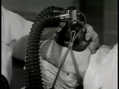 vídeos de stock, filmes e b-roll de wall clock 805 patient into operating room team of surgeon technicians nurses surgical light female patient w/ oxygen mask being held on face male... - 1948
