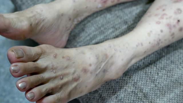 wart on woman leg skin - mole skin stock videos and b-roll footage
