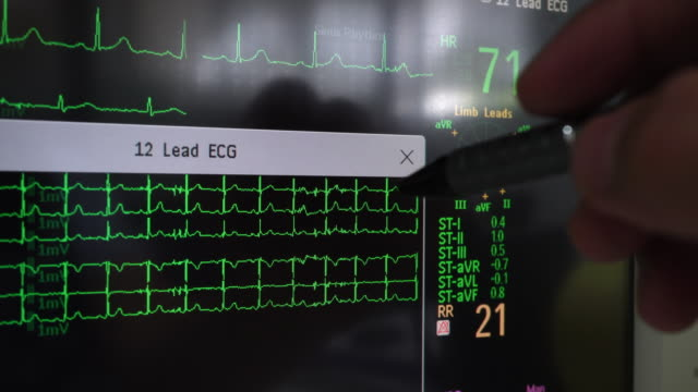 stockvideo's en b-roll-footage met ecg wavefromth - cardiovasculaire training