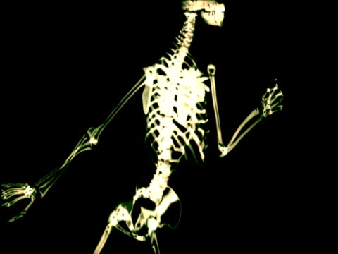 white x-ray skeleton moving on black background (graphics) - x ray image stock videos & royalty-free footage