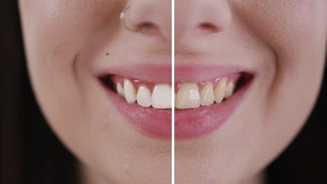 vídeos de stock, filmes e b-roll de slo mo clareamento de dentes de uma jovem mulher branca sorridente - filme colagem