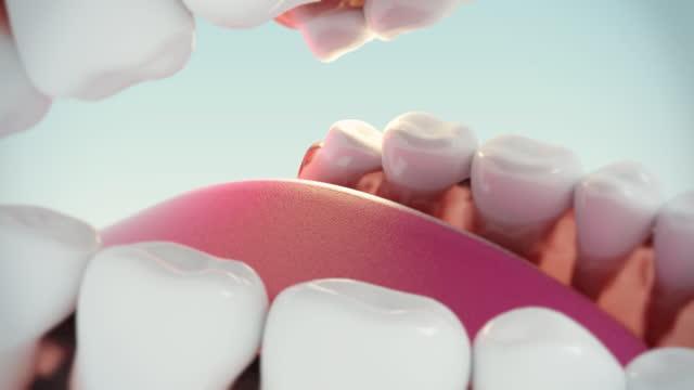 wisdom tooth problem. - wisdom stock videos & royalty-free footage