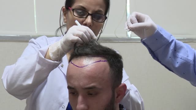 Image result for Hair Transplant Clinic istock