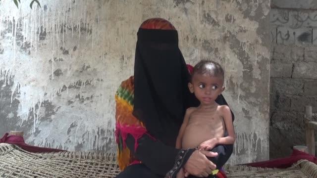 with their eyes bulging stomachs swollen and bones visible children in the rebel held fishing village of al khukha are facing starvation as yemen's... - yemen bildbanksvideor och videomaterial från bakom kulisserna
