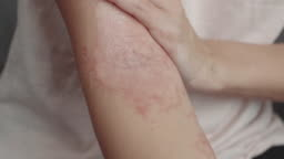 woman applies a dermatitis cream