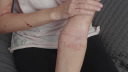 woman applies a harmonious dermatitis ointment