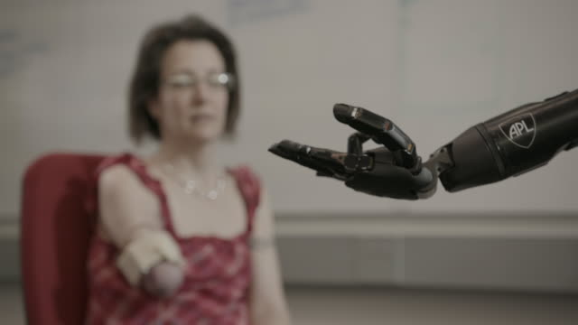 woman controls fingers on bionic arm - amputee stock-videos und b-roll-filmmaterial