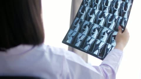 frau doktor hält röntgenfilm magnetresonanzbild (mrt) und analyse - hüfte stock-videos und b-roll-filmmaterial