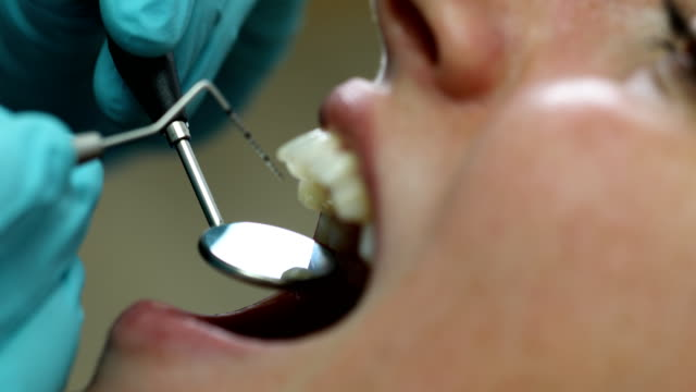 woman getting a dental treatment at dentist - mirror stock videos & royalty-free footage