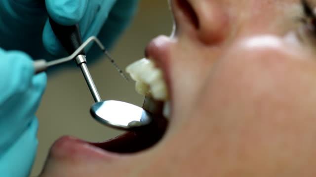 vídeos de stock, filmes e b-roll de mulher que começ um tratamento dental no dentista - dentista