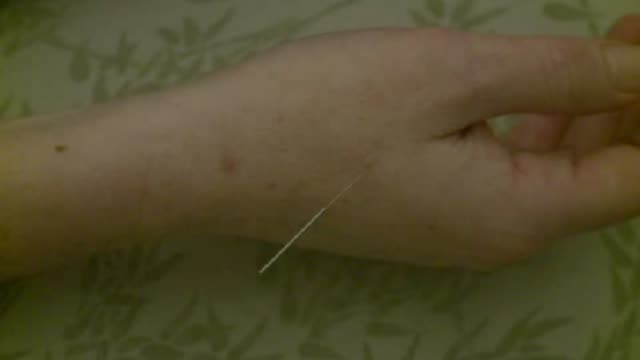 woman getting acupuncture on october 08 2010 in dallas texas - alternative therapy stock videos & royalty-free footage