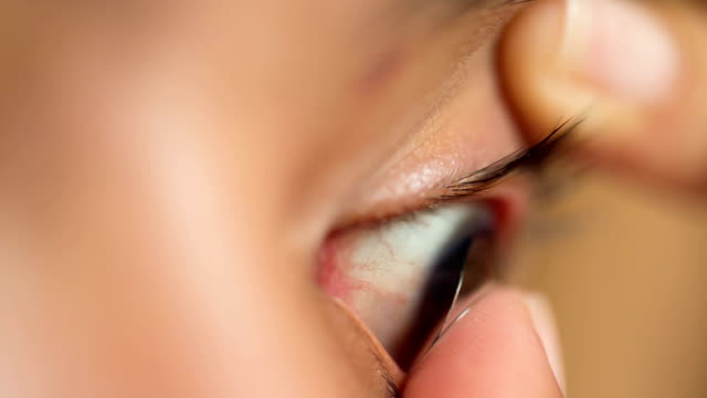 woman inserting contact lens - contact lens stock videos and b-roll footage
