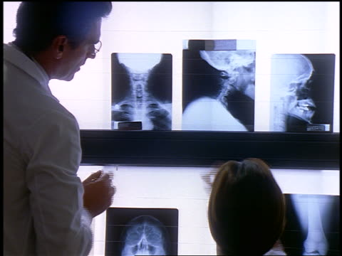 woman intern nodding + looking up at male doctor talking + pointing to neck x-rays - medical student stock videos and b-roll footage