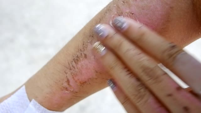 woman itched and rub dry wound on her arm - scar stock videos and b-roll footage