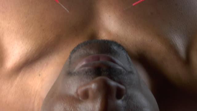 vídeos de stock e filmes b-roll de oh cu pan woman placing acupuncture needles in man's stomach / new york, usa - acupuntura
