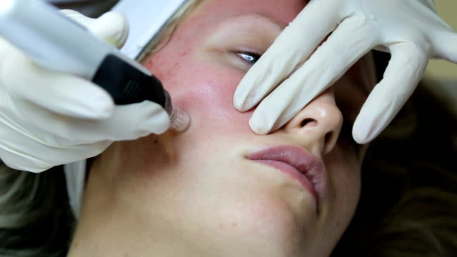 woman receiving mesotherapy - beauty treatment stock videos & royalty-free footage