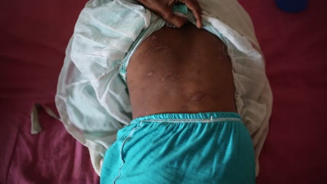 a woman showing the scars on the body of her sevenyearold daughter jannat at the burn unit of dhaka medical college hospital dhaka bangladesh on... - folter stock-videos und b-roll-filmmaterial