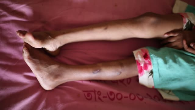 vídeos de stock e filmes b-roll de a woman showing the scars on the body of her sevenyearold daughter jannat at the burn unit of dhaka medical college hospital dhaka bangladesh on... - criança de escola primária