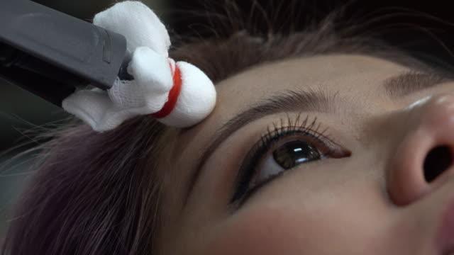 vídeos de stock e filmes b-roll de mulher, paralisia de bell, a estimulação eléctrica no rosto - paralisia