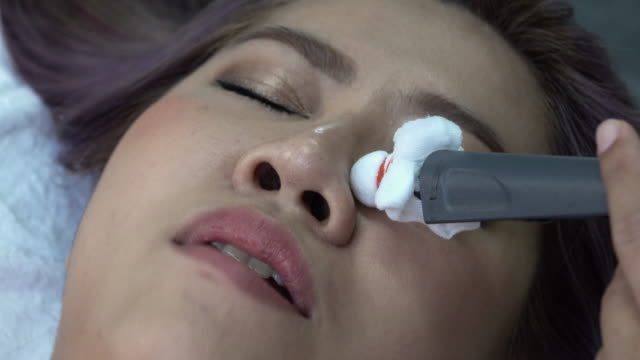 woman was bell's palsy, electrical stimulation on face - muscle fiber stock videos and b-roll footage