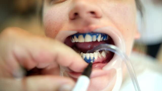 vídeos de stock, filmes e b-roll de mulher, clareamento de dentes no dentista - saúde dental