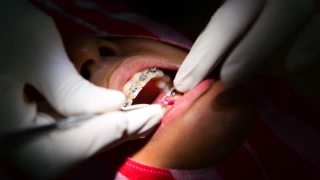 vídeos de stock, filmes e b-roll de mulher com os suportes no escritório do dentista - brace